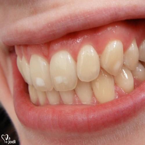 بد رنگی دندان