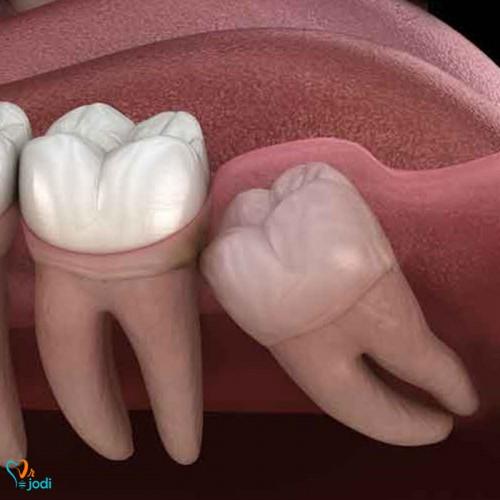 نهفتگی دندان