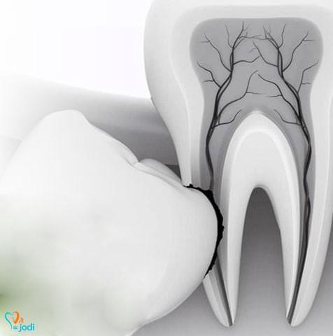 ریشه دندان