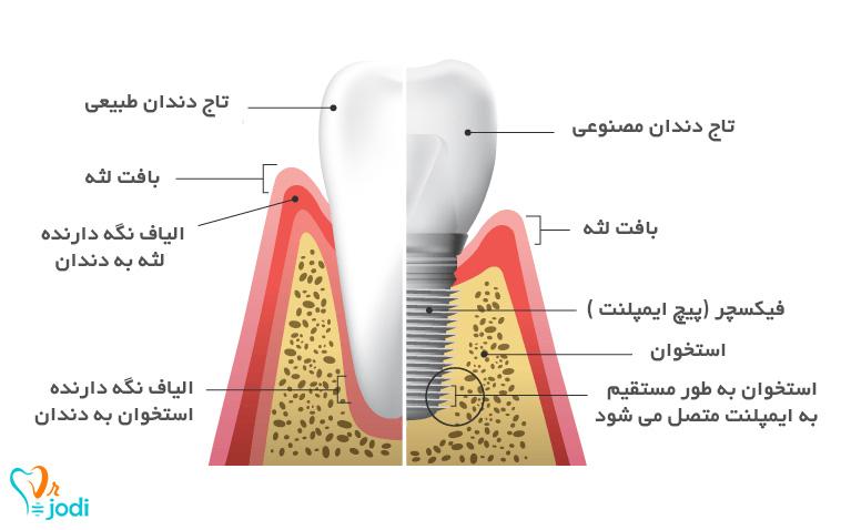 مراحل و زمان ایمپلنت دندان