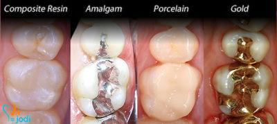 مواد دندان