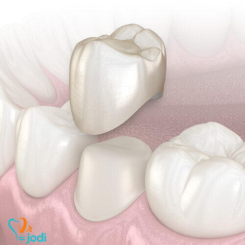 مشکلات پس از روکش دندان