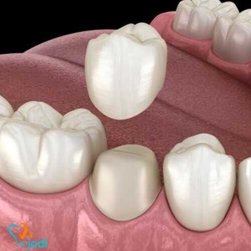 انواع چسب روکش دندان